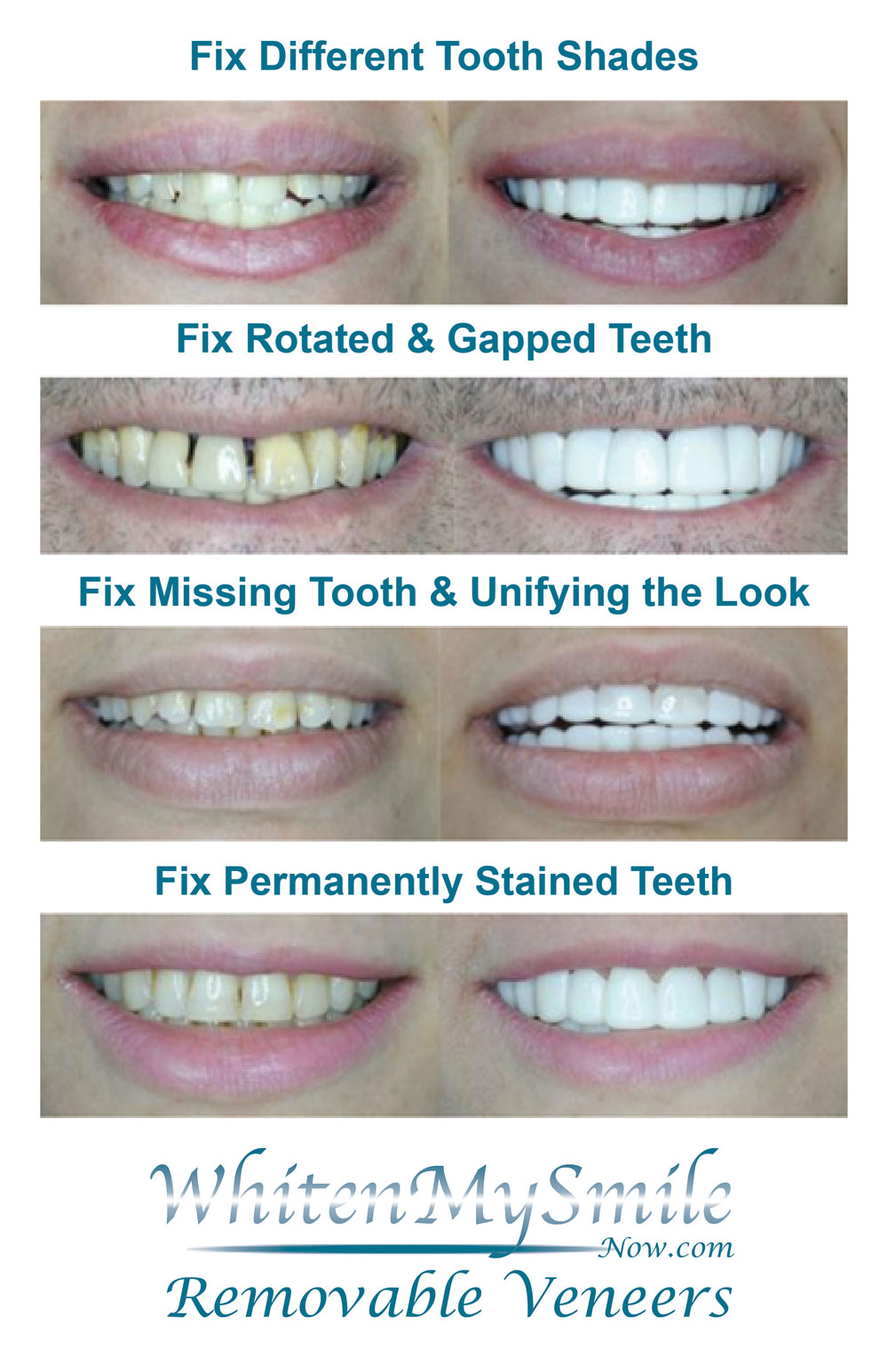 Now Offering Removable Veneers! Never Stop Smiling